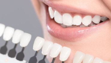 Teeth Whitening in Nipawin